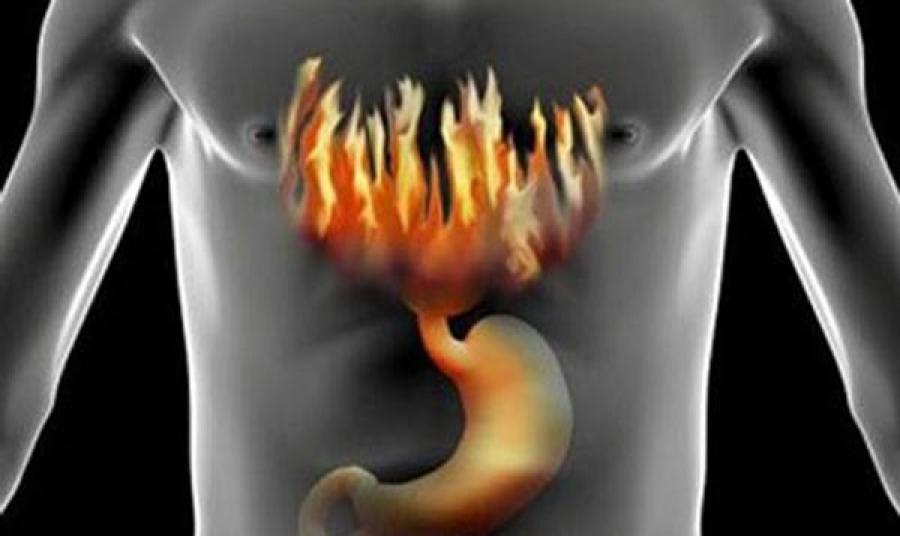 Симптомы повышенной кислотности