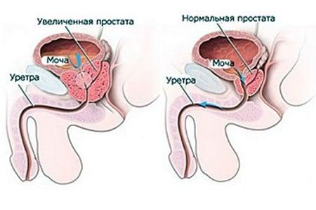 Нормальная и увеличенная простата