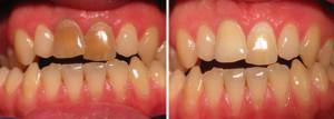 Особенности внутриканального отбеливания мертвых зубов без нервов: что такое эндоотбеливание?