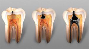 Депульпирование или экстирпация удаление пульпы зуба перед протезированием