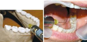 Метод интралигаментарной анестезии в стоматологии особенности и противопоказания