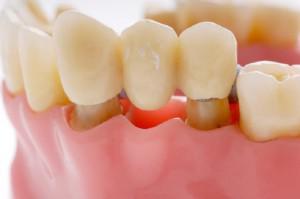Льготное протезирование зубов пенсионерам, инвалидам и ветеранам труда: как получить компенсации?