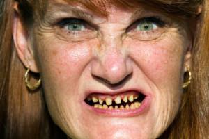 К чему может сниться кариес на зубе у себя или у других: ищем толкования в сонниках
