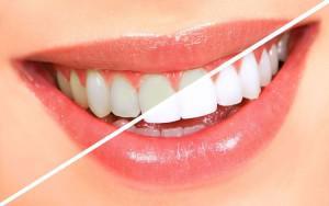 Можно ли чистить зубы хозяйственным или обычным мылом инструкция по использованию
