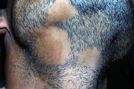 Местами лысеет борода