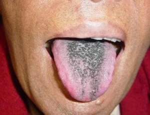 Причины возникновения серого налета на языке у взрослых и детей, особенности лечения