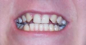 Что такое адентия, как лечить частичное и полное отсутствие зубов у детей и взрослых?