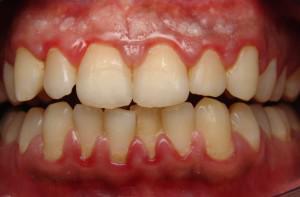 Что делать при воспалении полости рта (слизистой оболочки и языка): признаки и лечение заболеваний