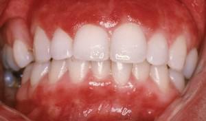 Лечение гнойного бактериального стоматита (стафилококкового, стрептококкового) у взрослых с фото