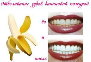 Можно ли отбелить зубы с помощью банановой кожуры, как правильно проводить процедуру?