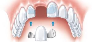Как ставят зубные мосты: адгезивные, цельнолитые и штампованные типы мостовидных протезов с фото