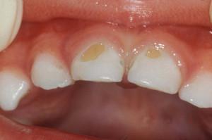 Что нужно делать, если у детей болят молочные зубы и появился кариес: как лечить и можно ли ставить пломбы?