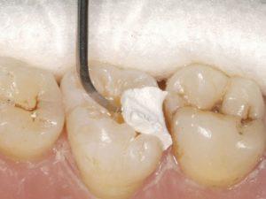Мышьяк в лечении зубов: что это такое, как действует, опасно ли его съесть и имеется ли антидот?