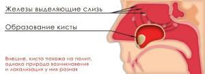 Киста правой или левой верхнечелюстной пазухи: симптомы заболевания, причины и способы лечения