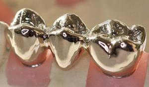 Какие лучше ставить коронки на импланты циркониевые или металлокерамические: способы их фиксации с фото