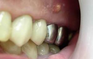 Лечение радикулярной, резидуальной и фолликулярной кисты зуба на верхней или нижней челюсти
