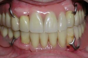 Какой вид зубного протеза лучше ставить при пародонтозе, можно ли использовать импланты, коронки и виниры?