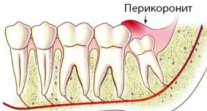 Способы иссечения капюшона над зубом мудрости при его воспалении: сколько будет болеть десна?