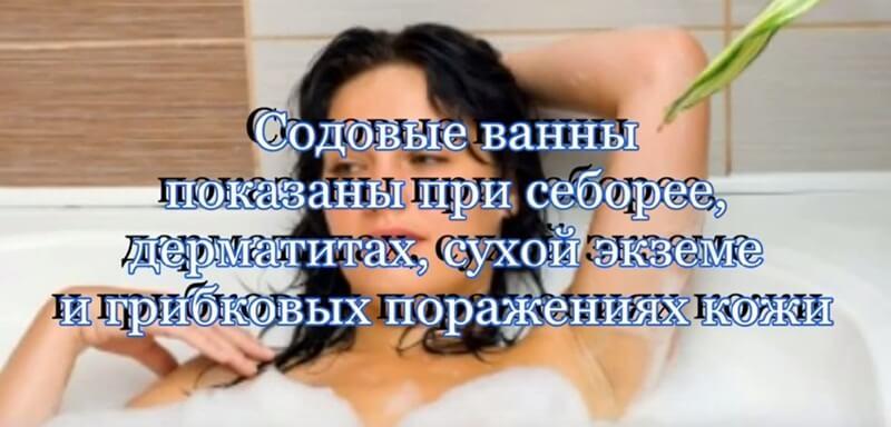 Содовые ванны показаны при: себорее, дерматитах, сухой экземе, грибковых поражениях.