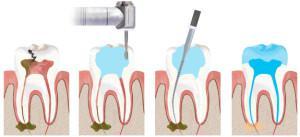 Как чистят зубные корневые каналы: обработка, обтурация и другие основы эндодонтического лечения