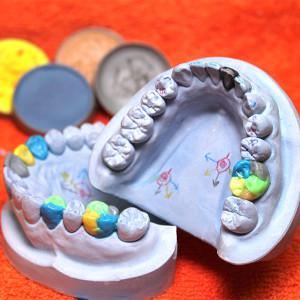 Применение воскового моделирования в стоматологии современная техника восстановления зубов