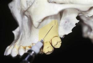 Понятие и виды проводниковой анестезии в стоматологии, особенности применения наркоза нижней и верхней челюсти