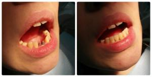 Что такое имплантация зубов и как правильно делать эту процедуру: этапы вживления имплантов с видео