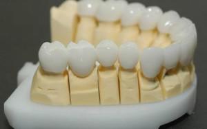 Установка керамических коронок на передние зубы с фото до и после протезирования