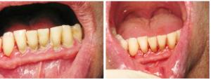 Лечение пародонтального (десневого) кармана с помощью открытого и закрытого кюретажа: что означает эта процедура?