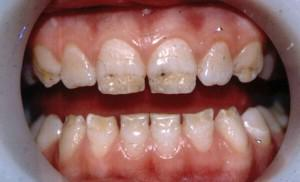 Способы классификации некариозных поражений твердых тканей зуба лечение гиперплазии эмали, флюороза и эрозий