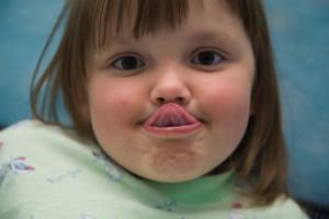 Как определить короткую уздечку языка или верхней губы у ребенка, в каком возрасте ее лучше подрезать?
